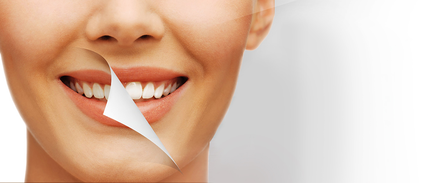Blanqueamiento y limpieza dental