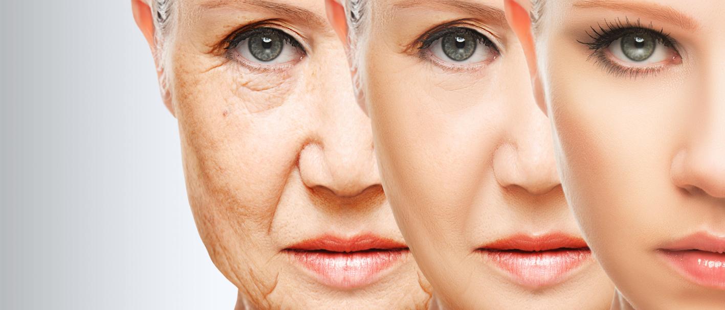Peelings y medicina antienvejecimiento